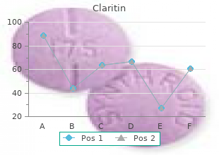 order claritin 10mg on line