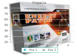 buy cheap finpecia 1mg on-line